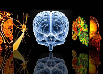 Sleep Disorder Photograph - Neurology by Pasieka