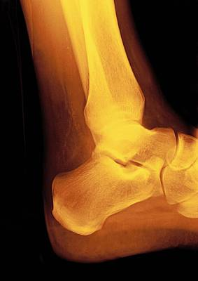 Normal Ankle Joint, X-ray Art Print by Miriam Maslo
