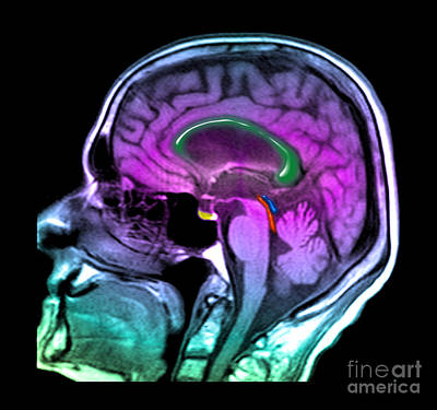 Hydrocephalus Photograph - Normal Pressure Hydrocephalus by Medical Body Scans