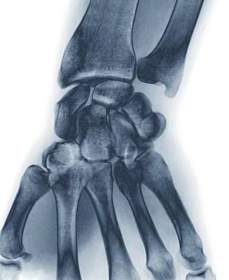 Normal Wrist, X-ray Art Print by Zephyr