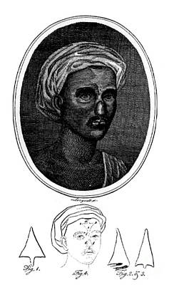 Reconstruction Photograph - Nose Reconstruction, 1794 by Science Source