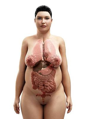 Obese Woman's Organs, Artwork Art Print by Sciepro
