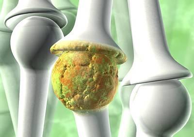 Osteoarthritis, Artwork Art Print
