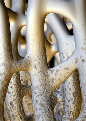 Osteoporosis Art Print