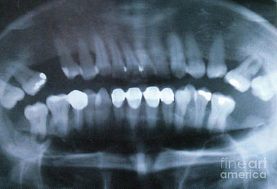 Panoramic Dental X-ray Art Print by Science Source