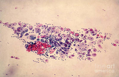 Pap Smear, Parabasal Cells Art Print by Science Source