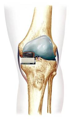 Partial Knee Replacement, Artwork Art Print by D & L Graphics