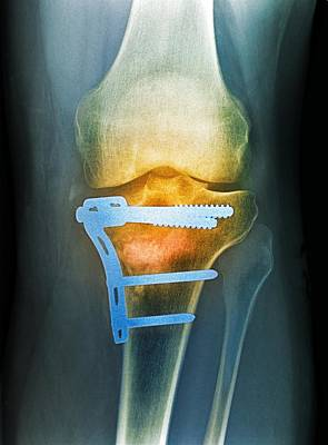 Pinned Broken Knee, X-ray Art Print