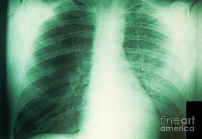 Bubonic Plague Photograph - Plague X-ray by Science Source