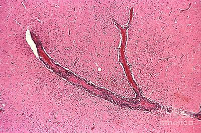 Rabies Virus, Lm Art Print