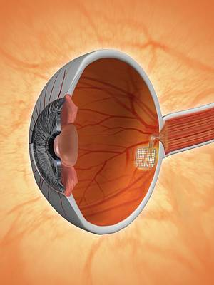 Retinal Implant, Artwork Art Print