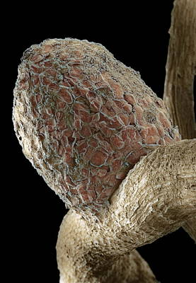Root Nodule Art Print by Dr Jeremy Burgess