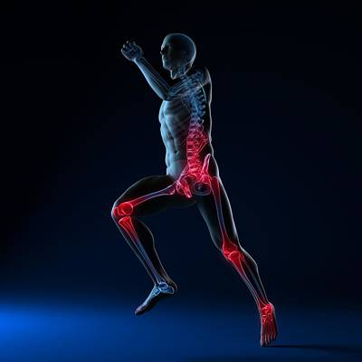 Running Injuries, Conceptual Artwork Art Print by Sciepro