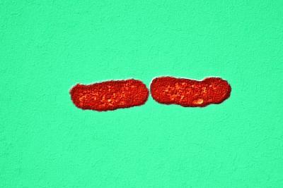 Salmonella Bacteria, Sem Art Print by Dr Klaus Boller