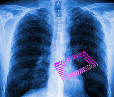 Security Chip In A Human Chest Art Print by Pasieka