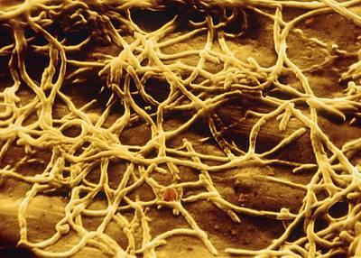 Sem Of Legionella Pneumophila Art Print by Cnri