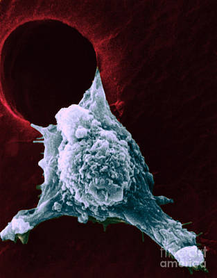 Sem Of Metastasis Art Print by Science Source
