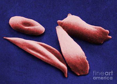 Sickle Red Blood Cells Art Print by Omikron