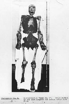 Skeletal Reconstruction, Buck Ruxton Art Print