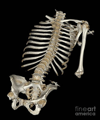 Photograph - Skeletal Reconstruction by Science Source