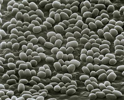 Spores Of Bacillus Anthracis Bacteria Art Print