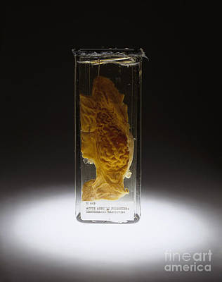 Photograph - Stomach, Hemorrhagic Gastritis, Arsenic by Science Source