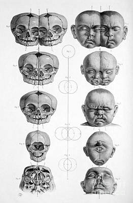 Photograph - Surgical Anatomy 1856 by Science Source