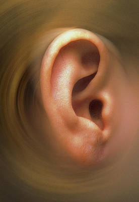 Swirling Effect Around Ear Pinna Of A Child Art Print by Victor De Schwanberg