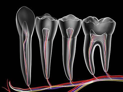 X-ray Image Photograph - Teeth, Cross Section by Pasieka