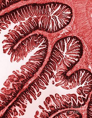Tem Of Intestinal Villi Art Print by Science Source