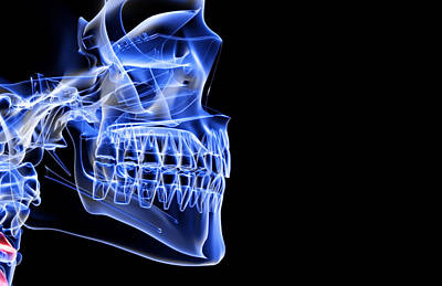 X-ray Image Digital Art - The Bones Of The Jaw by MedicalRF.com