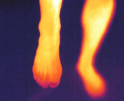 Thermogram Of Feet Art Print by Pasieka