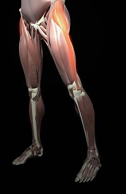 Thigh/lower Limb Abduction Art Print by MedicalRF.com