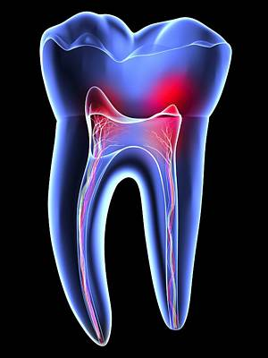 X-ray Image Photograph - Tooth Pain, Toothache by Pasieka