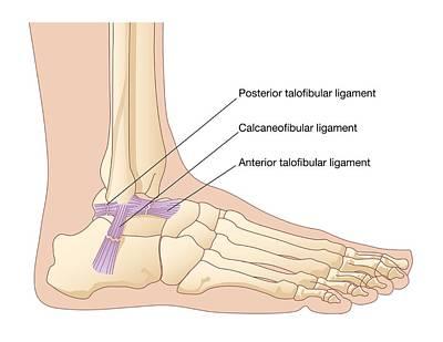 Torn Ankle Ligaments, Artwork Art Print by Peter Gardiner