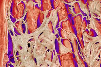 Trabeculae Carneae In The Heart, Sem Art Print by Susumu Nishinaga