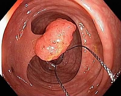 Tubular Polyp In The Colon Art Print by Gastrolab