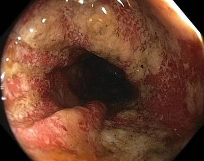 Ulcerative Colitis In The Sigmoid Colon Art Print by Gastrolab