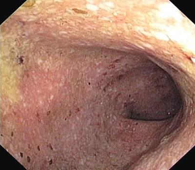 Ulcerative Colitis Of The Sigmoid Colon Art Print by Gastrolab
