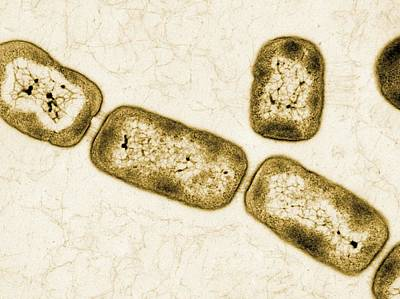 Vitreoscilla Bacteria, Tem Art Print