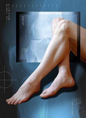 Woman's Legs, With Knee X-ray Art Print by Miriam Maslo
