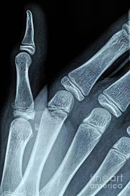 X-ray Image Of Boy's Hand Art Print by Sami Sarkis
