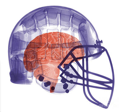 X-ray Of Head In Football Helmet Art Print by Ted Kinsman
