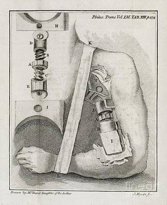 Bone-setting Mechanism, 18th Century Art Print by Middle Temple Library