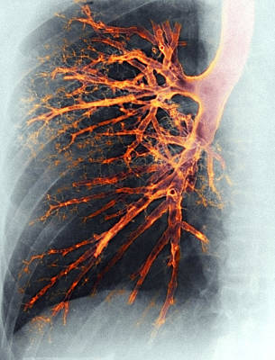 Airways Photograph - Lung, X-ray by Cnri