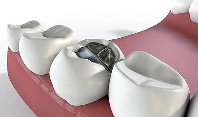Teeth With Lead Filling Art Print by Allan Swart