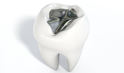 Canines Digital Art - Tooth With Lead Filling by Allan Swart