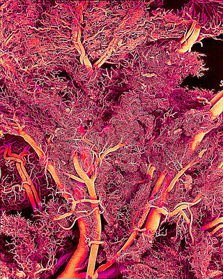 Blood Vessels, Sem Art Print by Susumu Nishinaga