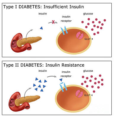 Infographic Photograph - Diabetes I & II by Monica Schroeder