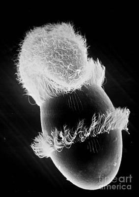 Photograph - Didinium Attacking Paramecium Sem by Greg Antipa